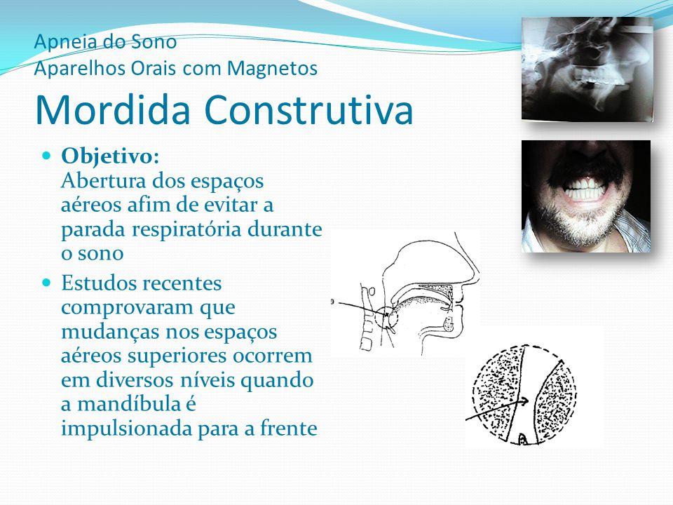 Apneia do Sono Aparelhos Orais com Magnetos Mordida Construtiva Objetivo: Abertura dos espaços aéreos afim de evitar a parada respiratória durante o s