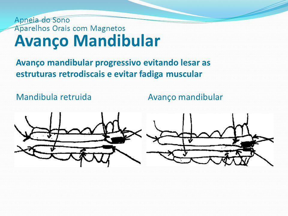 Mandibula retruida Avanço mandibular Avanço mandibular progressivo evitando lesar as estruturas retrodiscais e evitar fadiga muscular Apneia do Sono A