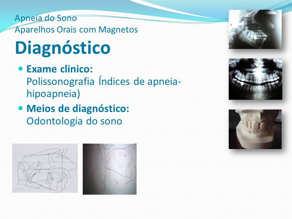 Apneia do Sono Aparelhos Orais com Magnetos Osa Infantil A respiração bucal quando instalada traz consequências como anomalias do esqueleto facial dentarias e apneia obstrutiva do sono OSA