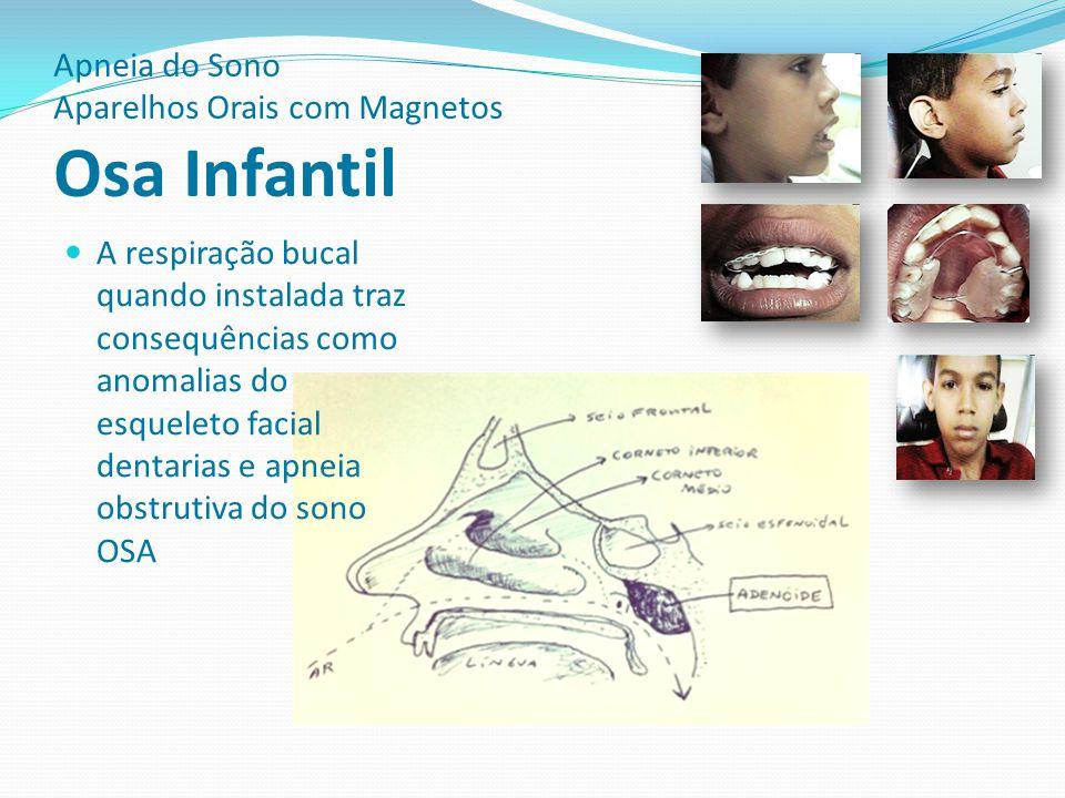 Apneia do Sono Aparelhos Orais com Magnetos Osa Infantil A respiração bucal quando instalada traz consequências como anomalias do esqueleto facial den