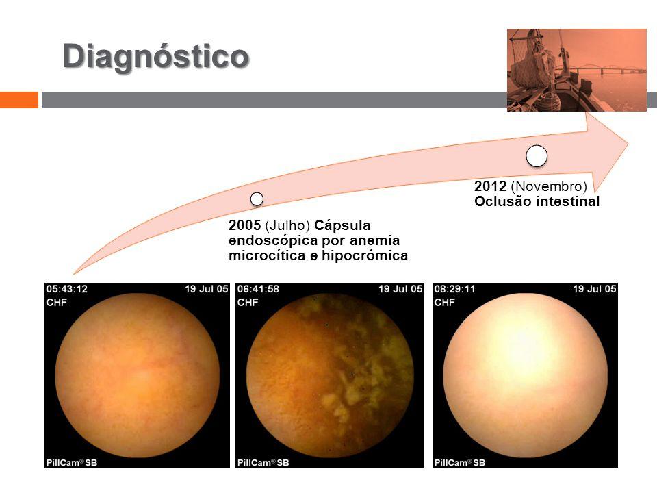 Diagnóstico 2005 (Julho) Cápsula endoscópica por anemia microcítica e hipocrómica 2012 (Novembro) Oclusão intestinal