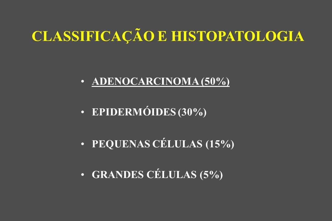 CLASSIFICAÇÃO E HISTOPATOLOGIA ADENOCARCINOMA (50%) EPIDERMÓIDES (30%) PEQUENAS CÉLULAS (15%) GRANDES CÉLULAS (5%)