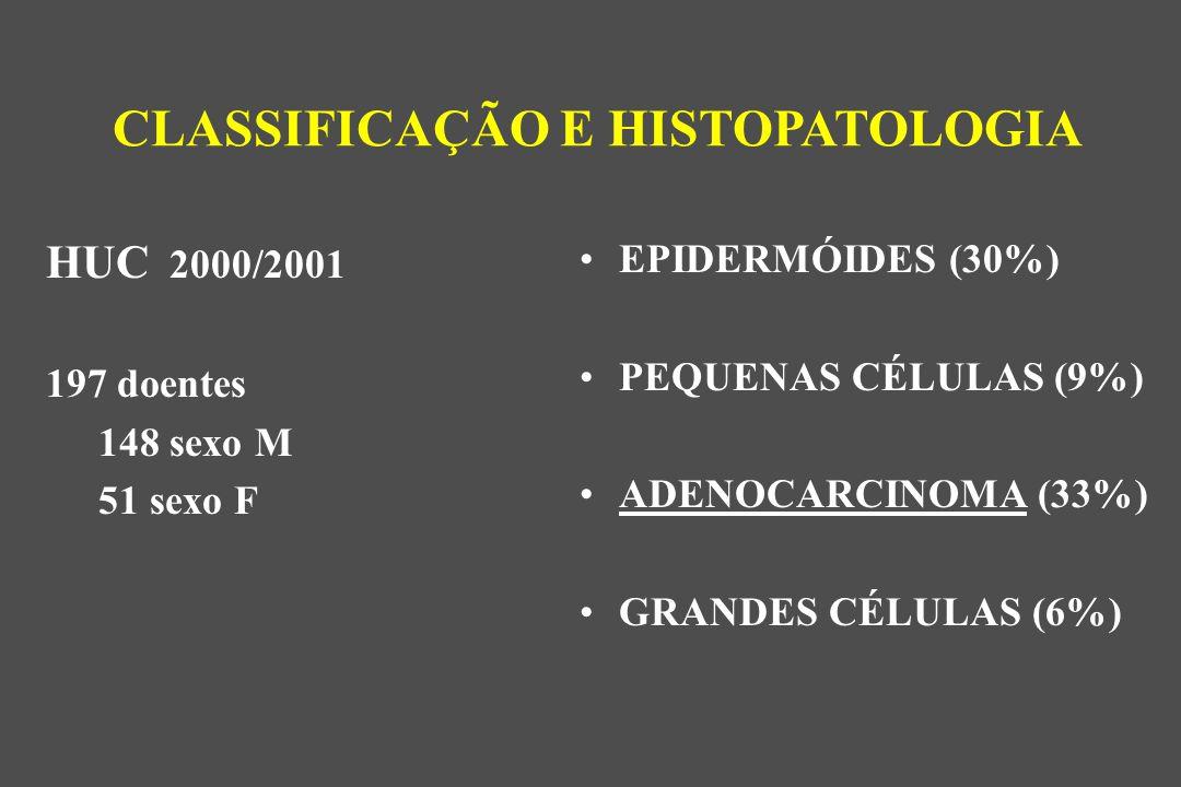 EPIDERMÓIDES (30%) PEQUENAS CÉLULAS (9%) ADENOCARCINOMA (33%) GRANDES CÉLULAS (6%) CLASSIFICAÇÃO E HISTOPATOLOGIA HUC 2000/2001 197 doentes 148 sexo M 51 sexo F