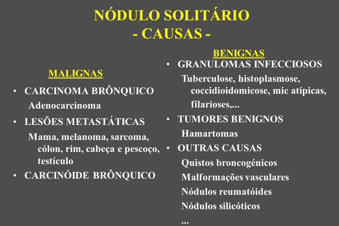 GRANULOMAS INFECCIOSOS Tuberculose, histoplasmose, coccidioidomicose, mic atípicas, filarioses,...