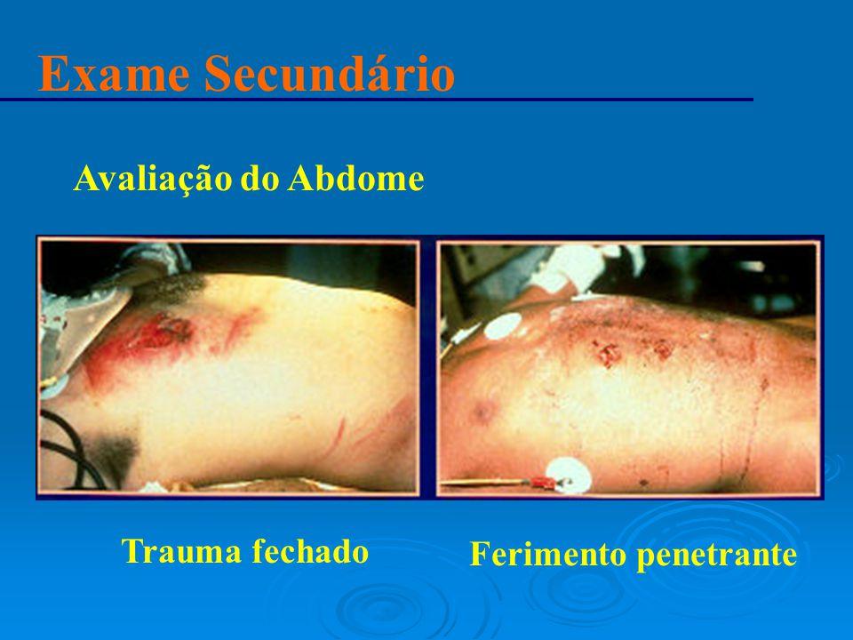 Exame Secundário Avaliação do Abdome Ferimento penetrante Trauma fechado