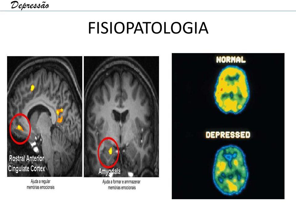 FISIOPATOLOGIA Depressão