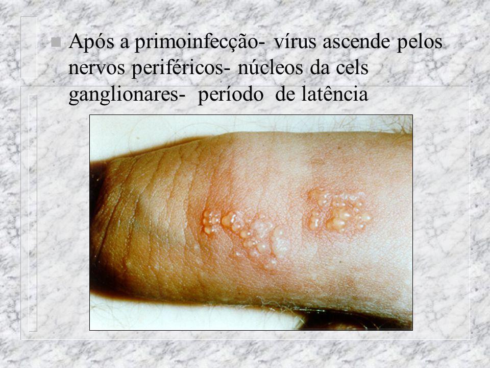 n Após a primoinfecção- vírus ascende pelos nervos periféricos- núcleos da cels ganglionares- período de latência