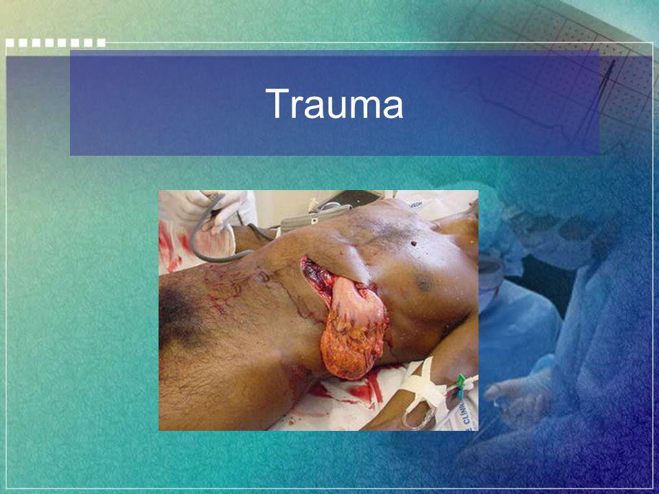 Laparotomia de Emergência Passe para o compartimento supramesocólico, empurrando o cólon transverso caudalmente.