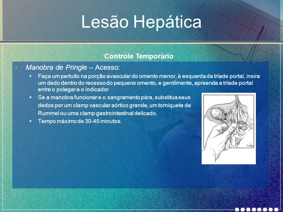 Lesão Hepática Manobra de Pringle – Acesso:  Faça um pertuito na porção avascular do omento menor, à esquerda da tríade portal, insira um dedo dentro