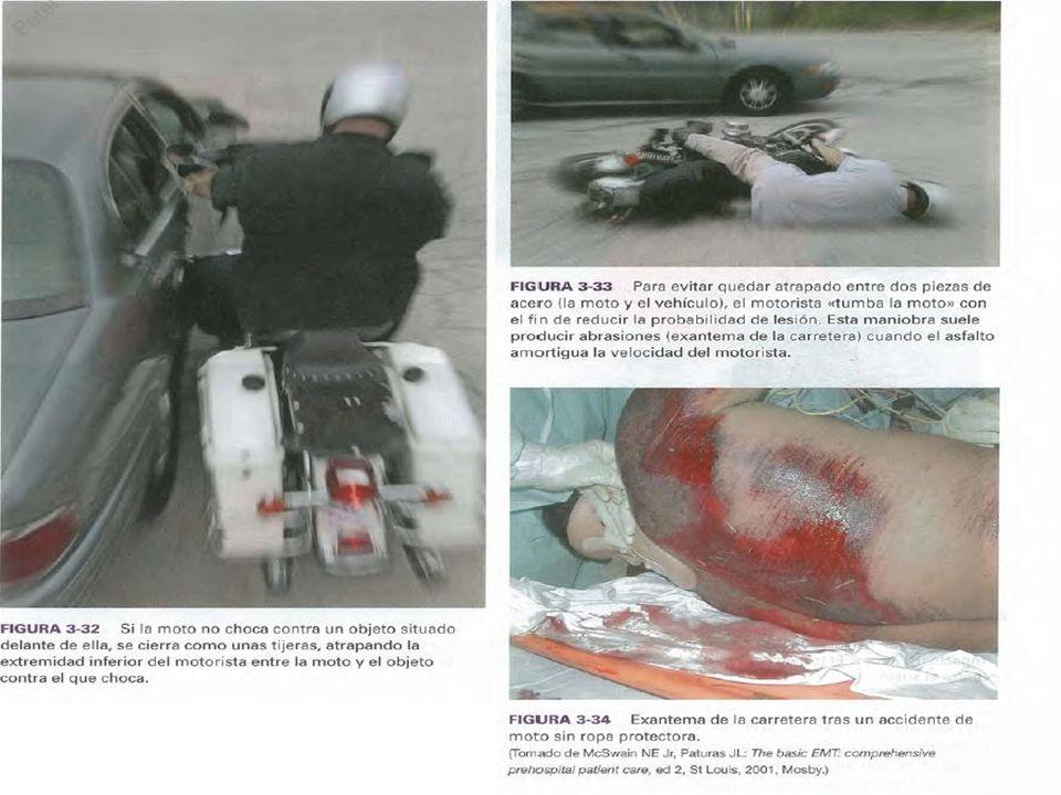 ATROPELAMENTOS No atropelamento, as lesões variam confomre a altura da vítima.