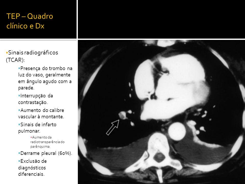 TEP – Quadro clínico e Dx  Sinais radiográficos (TCAR):  Presença do trombo na luz do vaso, geralmente em ângulo agudo com a parede.  Interrupção d