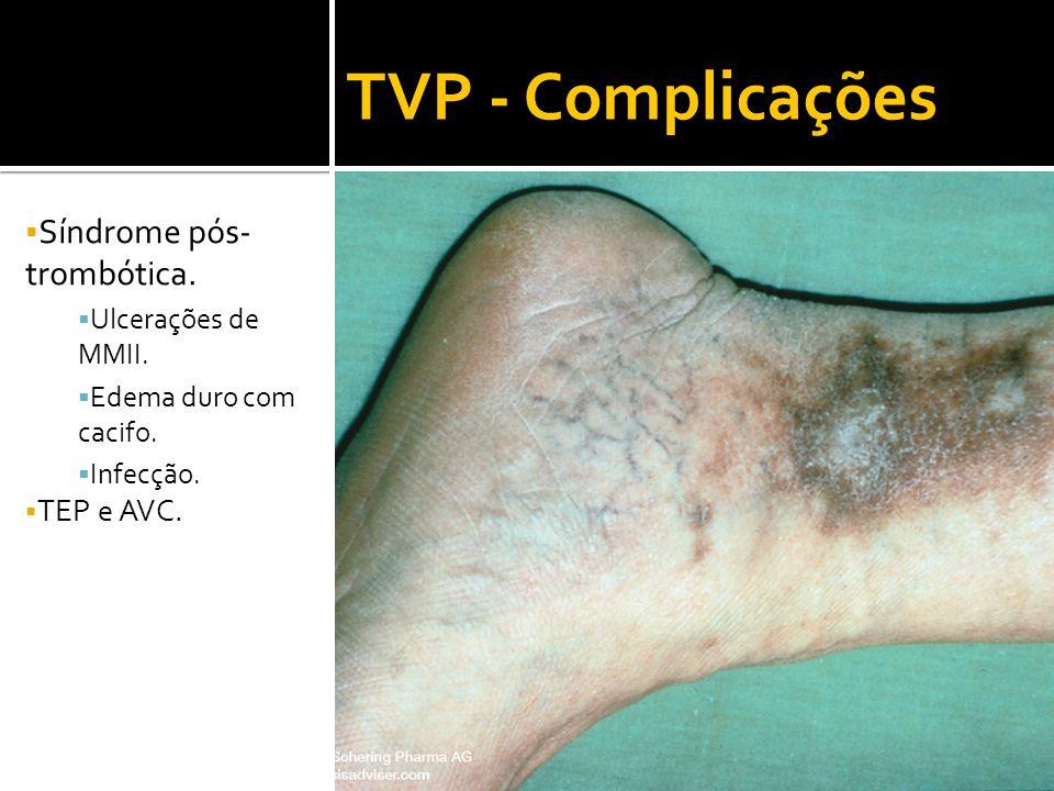 TVP - Complicações  Síndrome pós- trombótica.  Ulcerações de MMII.  Edema duro com cacifo.  Infecção.  TEP e AVC.