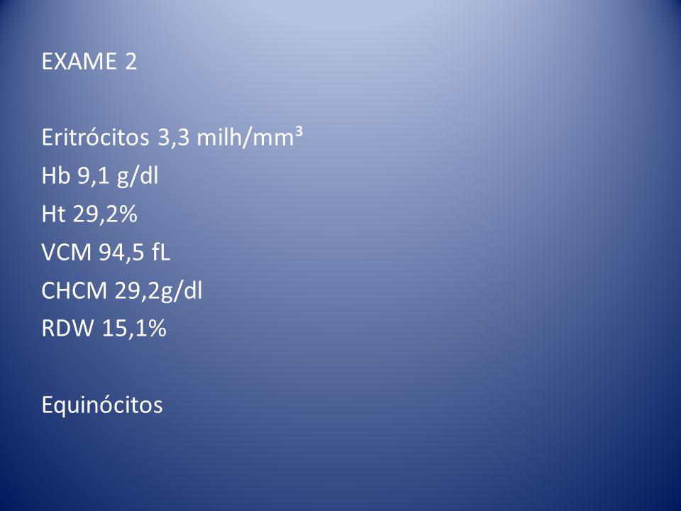 EXAME 2 Eritrócitos 3,3 milh/mm³ Hb 9,1 g/dl Ht 29,2% VCM 94,5 fL CHCM 29,2g/dl RDW 15,1% Equinócitos