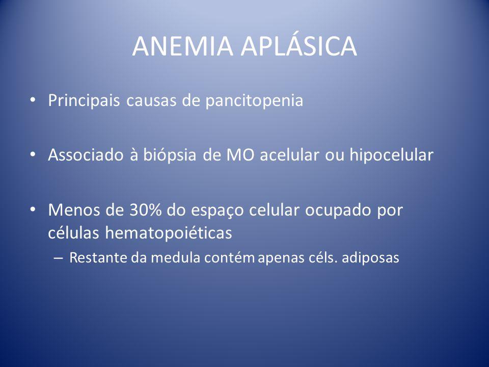ANEMIA APLÁSICA Principais causas de pancitopenia Associado à biópsia de MO acelular ou hipocelular Menos de 30% do espaço celular ocupado por células