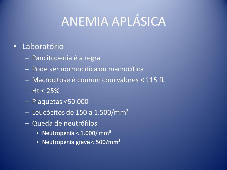 ANEMIA APLÁSICA Laboratório – Pancitopenia é a regra – Pode ser normocítica ou macrocítica – Macrocitose é comum com valores < 115 fL – Ht < 25% – Pla