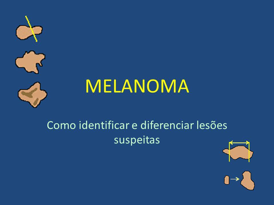 MELANOMA Como identificar e diferenciar lesões suspeitas