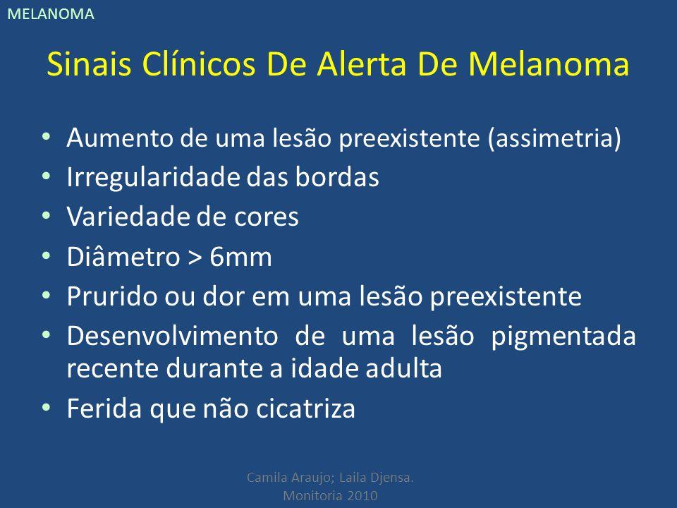 Camila Araujo; Laila Djensa. Monitoria 2010 MELANOMA Sinais Clínicos De Alerta De Melanoma A umento de uma lesão preexistente (assimetria) Irregularid