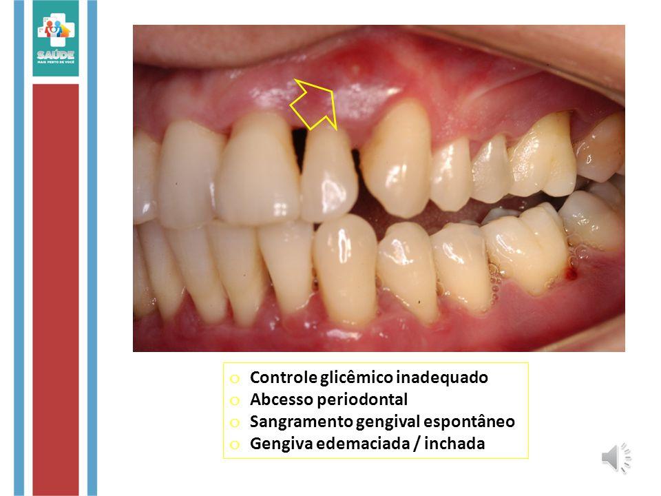 o Controle glicêmico inadequado o Abcesso periodontal o Sangramento gengival espontâneo o Gengiva edemaciada / inchada