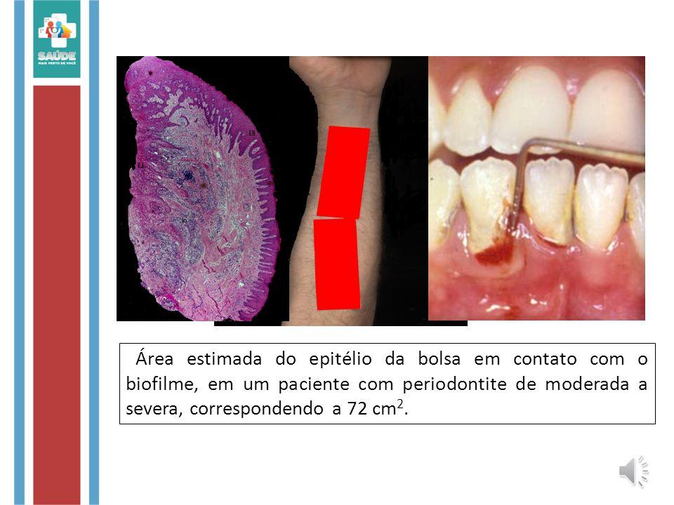 Área estimada do epitélio da bolsa em contato com o biofilme, em um paciente com periodontite de moderada a severa, correspondendo a 72 cm 2.