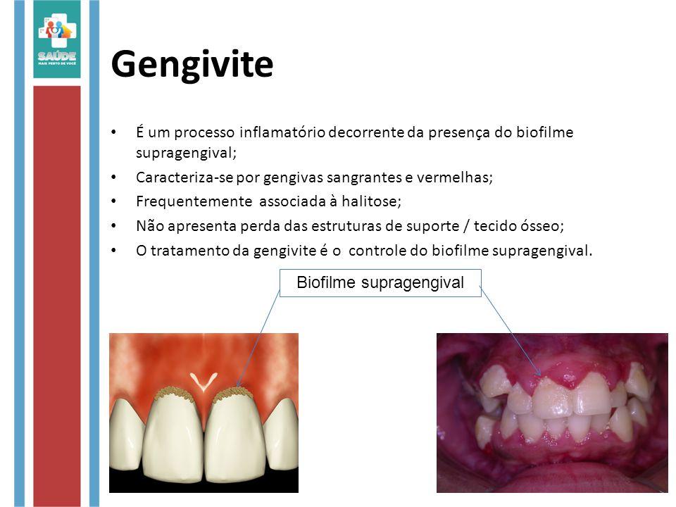 Gengivite É um processo inflamatório decorrente da presença do biofilme supragengival; Caracteriza-se por gengivas sangrantes e vermelhas; Frequentemente associada à halitose; Não apresenta perda das estruturas de suporte / tecido ósseo; O tratamento da gengivite é o controle do biofilme supragengival.