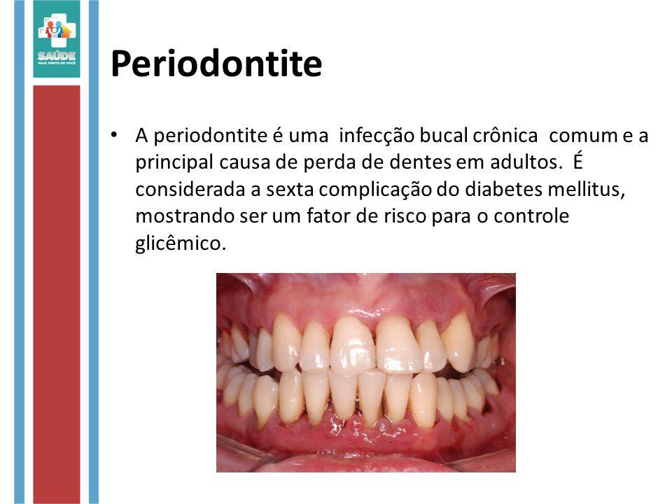 Periodontite A periodontite é uma infecção bucal crônica comum e a principal causa de perda de dentes em adultos. É considerada a sexta complicação do
