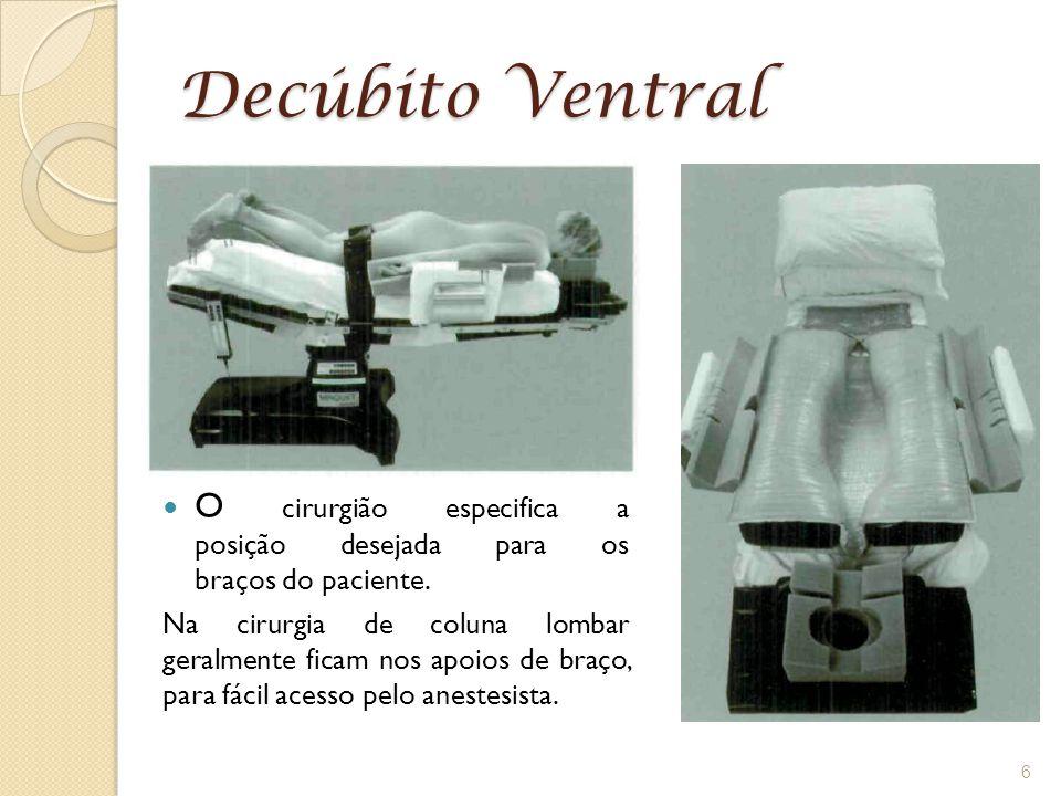 Decúbito Ventral O cirurgião especifica a posição desejada para os braços do paciente. Na cirurgia de coluna lombar geralmente ficam nos apoios de bra