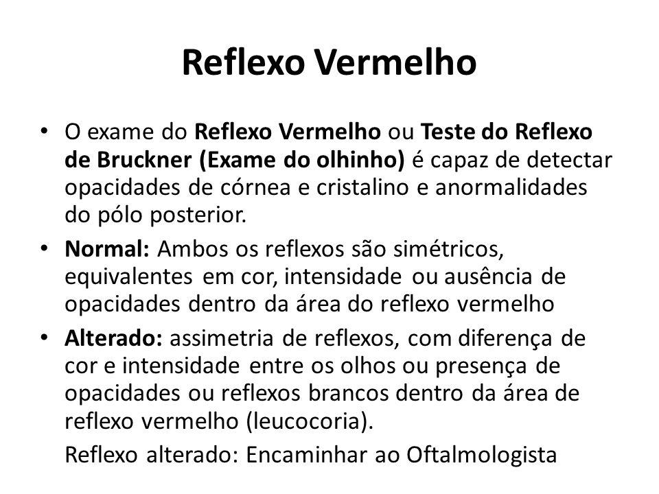 Reflexo Vermelho O exame do Reflexo Vermelho ou Teste do Reflexo de Bruckner (Exame do olhinho) é capaz de detectar opacidades de córnea e cristalino e anormalidades do pólo posterior.