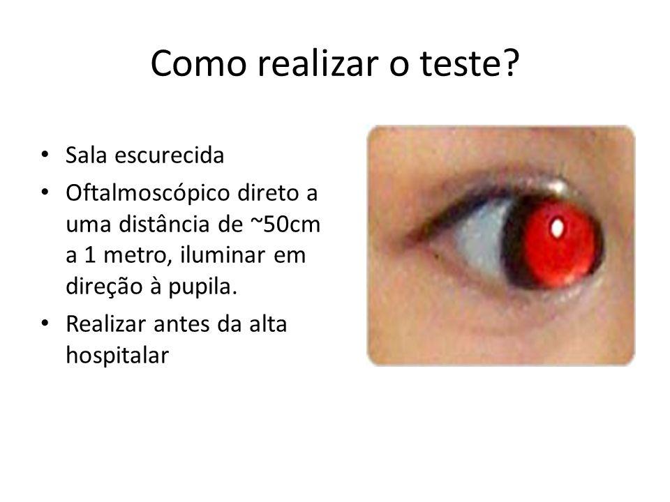 Como realizar o teste? Sala escurecida Oftalmoscópico direto a uma distância de ~50cm a 1 metro, iluminar em direção à pupila. Realizar antes da alta