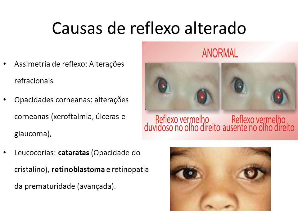 Causas de reflexo alterado Assimetria de reflexo: Alterações refracionais Opacidades corneanas: alterações corneanas (xeroftalmia, úlceras e glaucoma), Leucocorias: cataratas (Opacidade do cristalino), retinoblastoma e retinopatia da prematuridade (avançada).