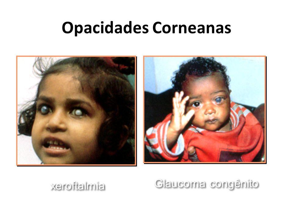 Opacidades Corneanas xeroftalmia Glaucoma congênito