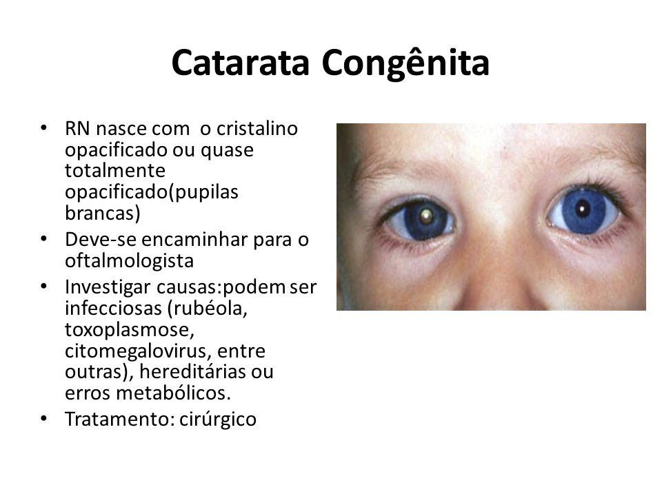 Catarata Congênita RN nasce com o cristalino opacificado ou quase totalmente opacificado(pupilas brancas) Deve-se encaminhar para o oftalmologista Investigar causas:podem ser infecciosas (rubéola, toxoplasmose, citomegalovirus, entre outras), hereditárias ou erros metabólicos.