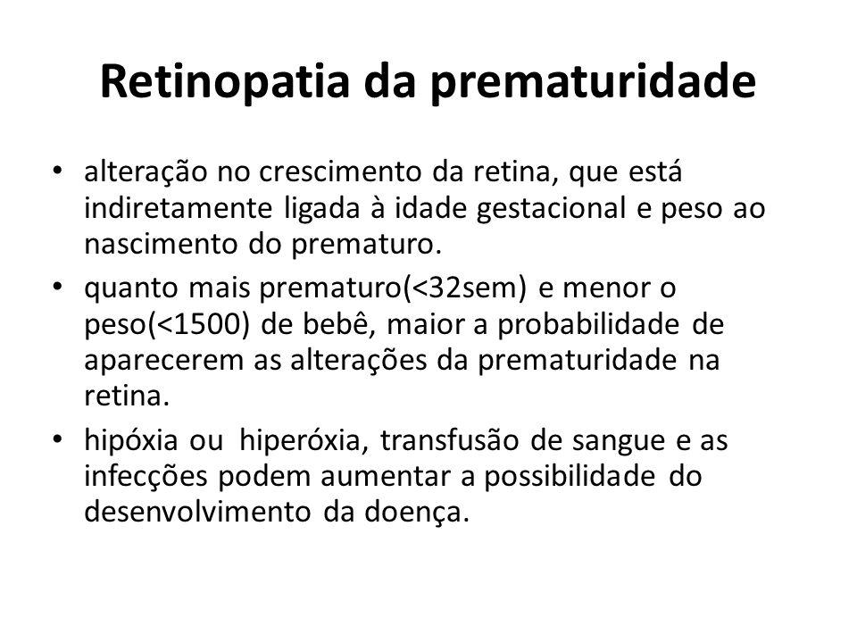 Retinopatia da prematuridade alteração no crescimento da retina, que está indiretamente ligada à idade gestacional e peso ao nascimento do prematuro.