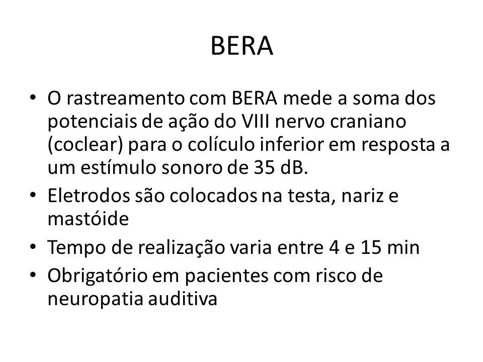 BERA O rastreamento com BERA mede a soma dos potenciais de ação do VIII nervo craniano (coclear) para o colículo inferior em resposta a um estímulo sonoro de 35 dB.