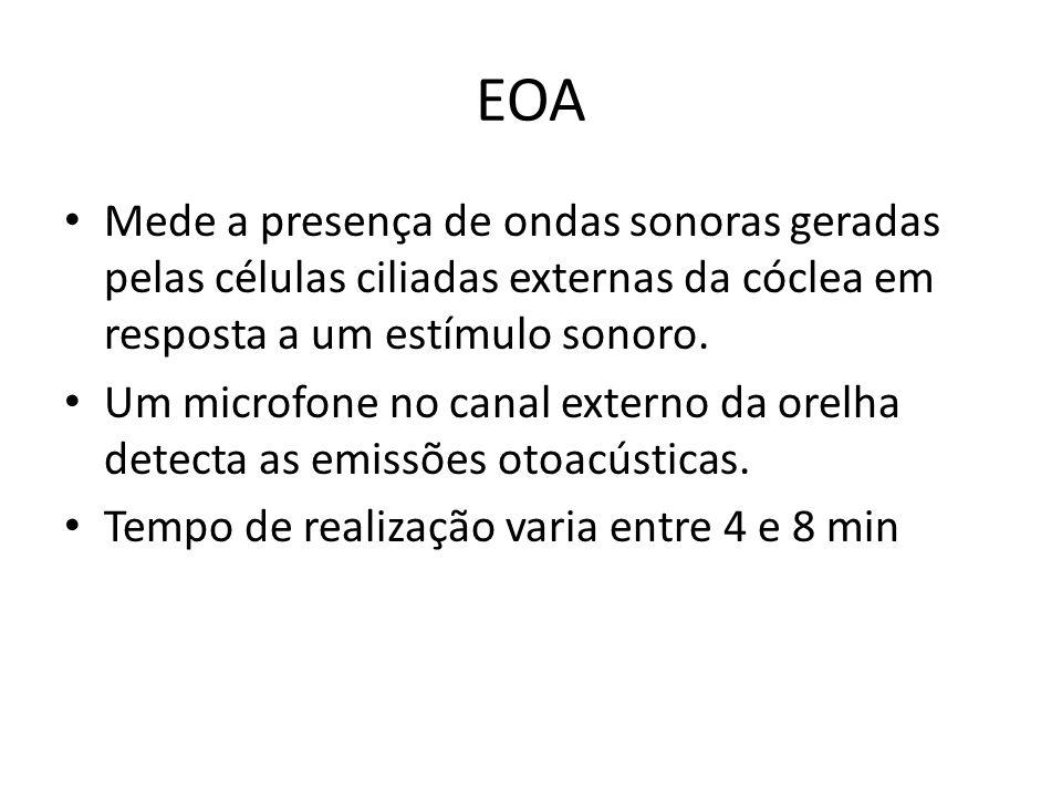 EOA Mede a presença de ondas sonoras geradas pelas células ciliadas externas da cóclea em resposta a um estímulo sonoro. Um microfone no canal externo