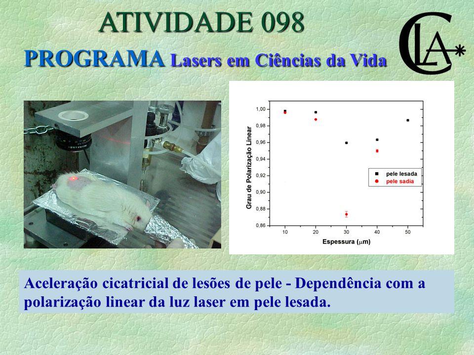 Aceleração cicatricial de lesões de pele - Dependência com a polarização linear da luz laser em pele lesada.