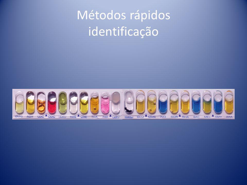 MÉTODOS RÁPIDOS Métodos rápidos para identificação microbiana Vitek –depende do crescimento bacteriano, utilização de carbohidratos e substratos bioquímicos.