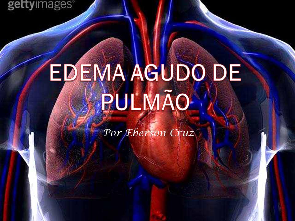 Definição Conjunto de sinais e sintomas que, anatomicamente, correspondem ao extravasamento de liquido seroso no espaço intersticial e/ou alvéolos pulmonares.
