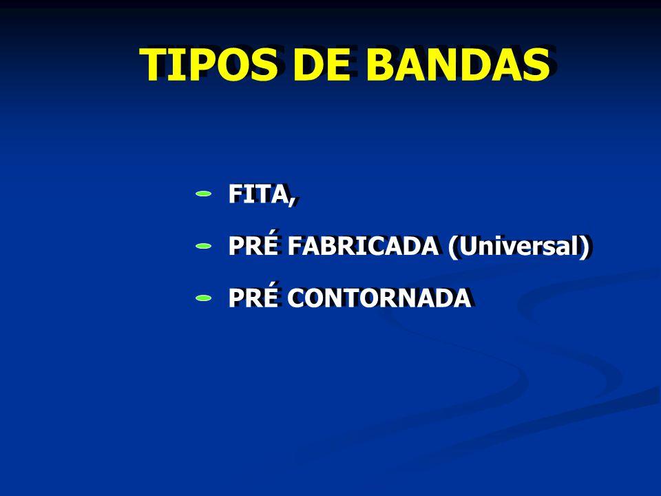 TIPOS DE BANDAS FITA, PRÉ CONTORNADA PRÉ FABRICADA (Universal)