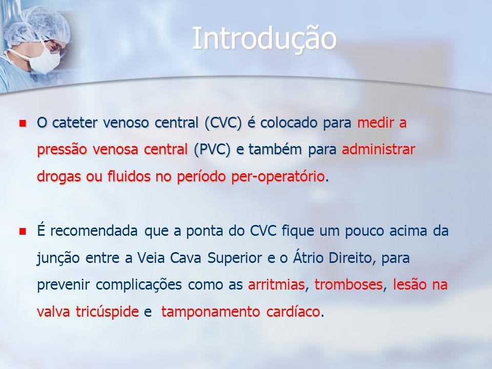 Introdução O cateter venoso central (CVC) é colocado para medir a pressão venosa central (PVC) e também para administrar drogas ou fluidos no período per-operatório.