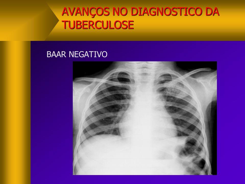 AVANÇOS NO DIAGNOSTICO DA TUBERCULOSE BAAR NEGATIVO