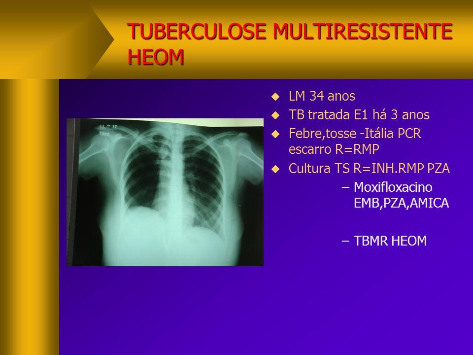TUBERCULOSE MULTIRESISTENTE HEOM  LM 34 anos  TB tratada E1 há 3 anos  Febre,tosse -Itália PCR escarro R=RMP  Cultura TS R=INH.RMP PZA –Moxifloxac