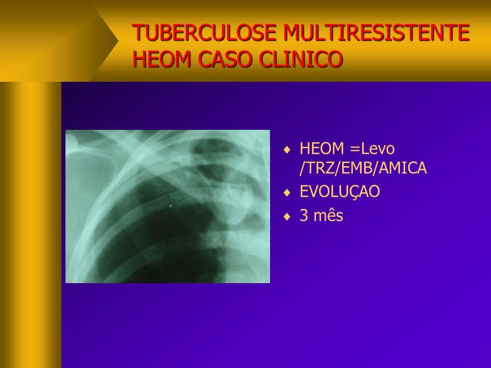 TUBERCULOSE MULTIRESISTENTE HEOM CASO CLINICO  HEOM =Levo /TRZ/EMB/AMICA  EVOLUÇAO  3 mês
