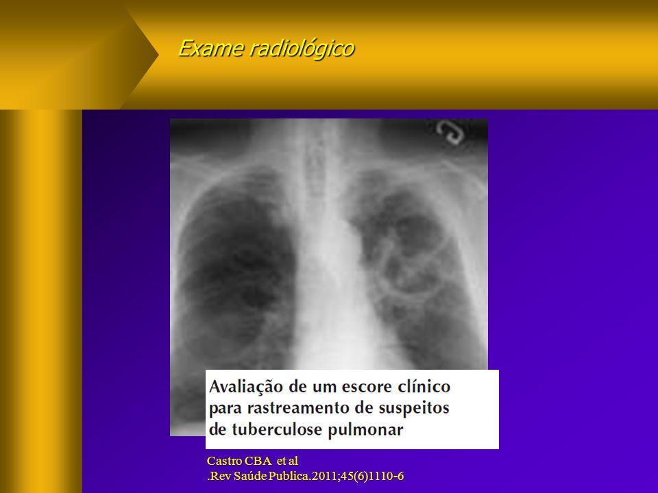 Exame radiológico SENSIBILIDADE TOSSE.1> E E <3 SEMANASS=88,2%E=61,1% Castro CBA et al.Rev Saúde Publica.2011;45(6)1110-6