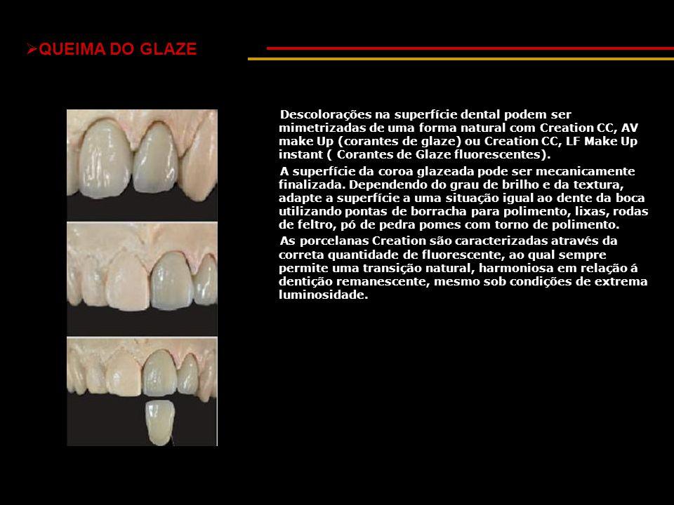  QUEIMA DO GLAZE Descolorações na superfície dental podem ser mimetrizadas de uma forma natural com Creation CC, AV make Up (corantes de glaze) ou Cr
