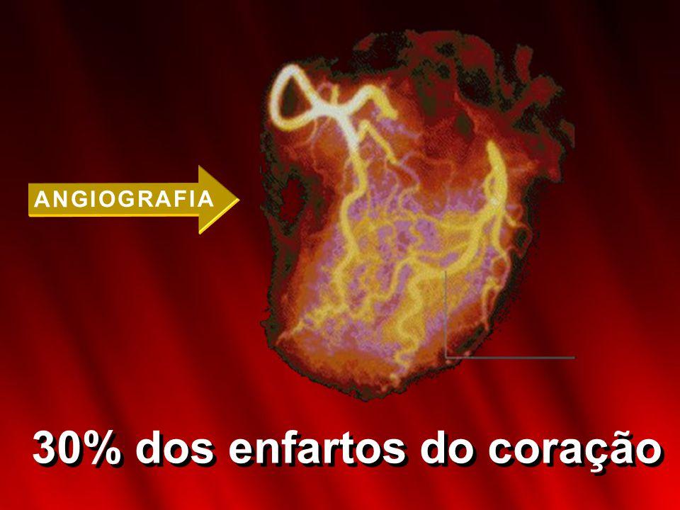 E N F I S E M AE N F I S E M A 80% das mortes causadas pela bronquite crônica e enfisema pulmonar.