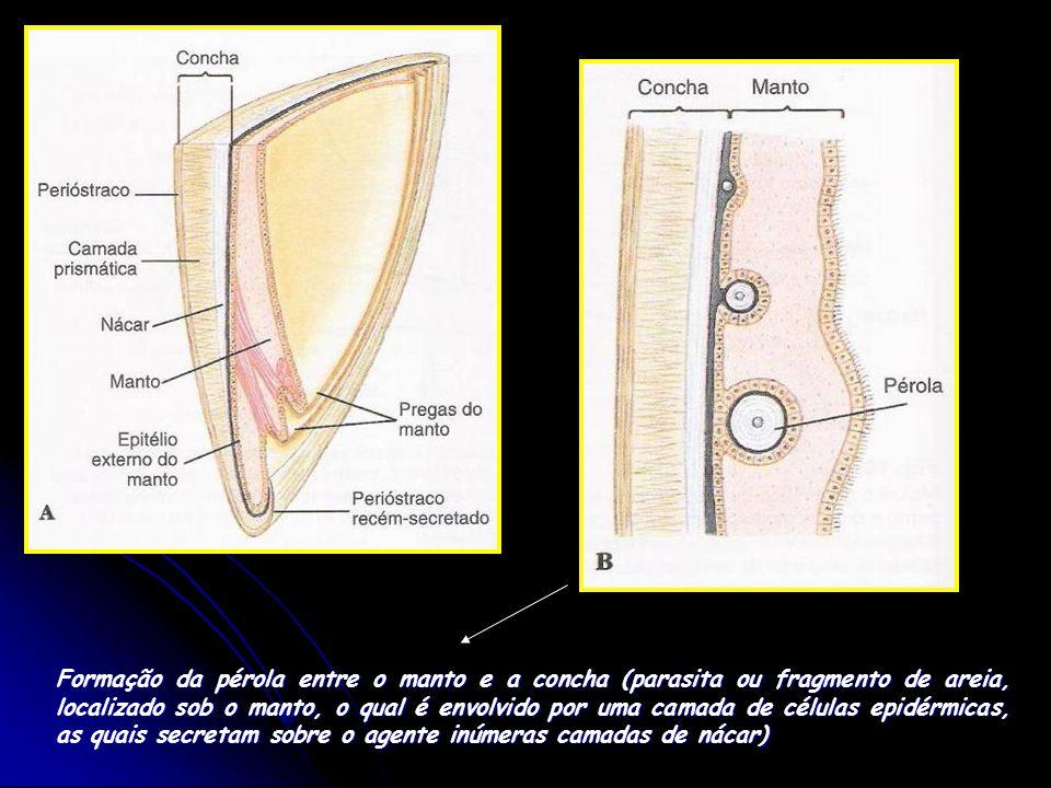 Formação da pérola entre o manto e a concha (parasita ou fragmento de areia, localizado sob o manto, o qual é envolvido por uma camada de células epid