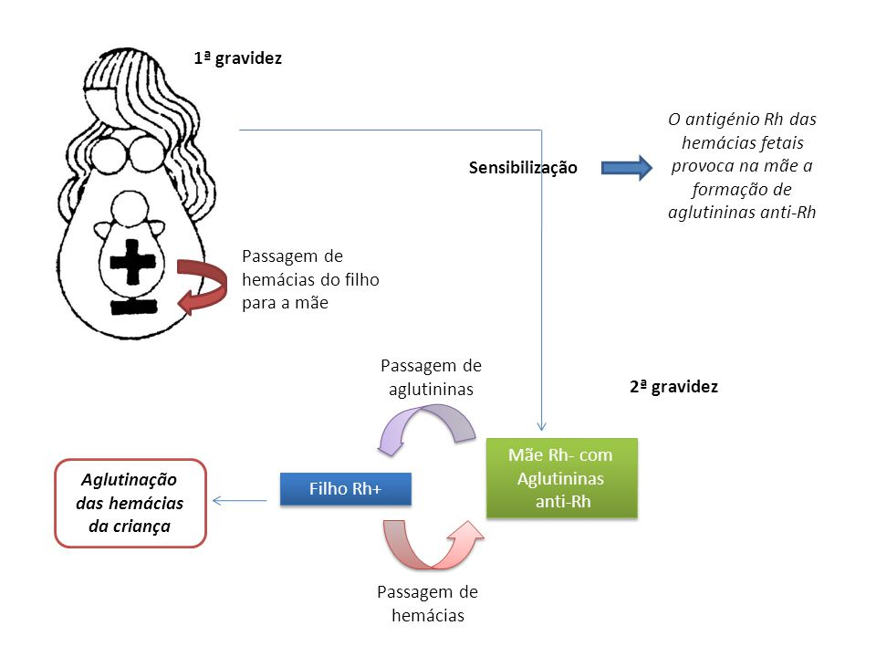 Passagem de hemácias do filho para a mãe Sensibilização O antigénio Rh das hemácias fetais provoca na mãe a formação de aglutininas anti-Rh 1ª gravidez 2ª gravidez Mãe Rh- com Aglutininas anti-Rh Mãe Rh- com Aglutininas anti-Rh Filho Rh+ Passagem de hemácias Passagem de aglutininas Aglutinação das hemácias da criança