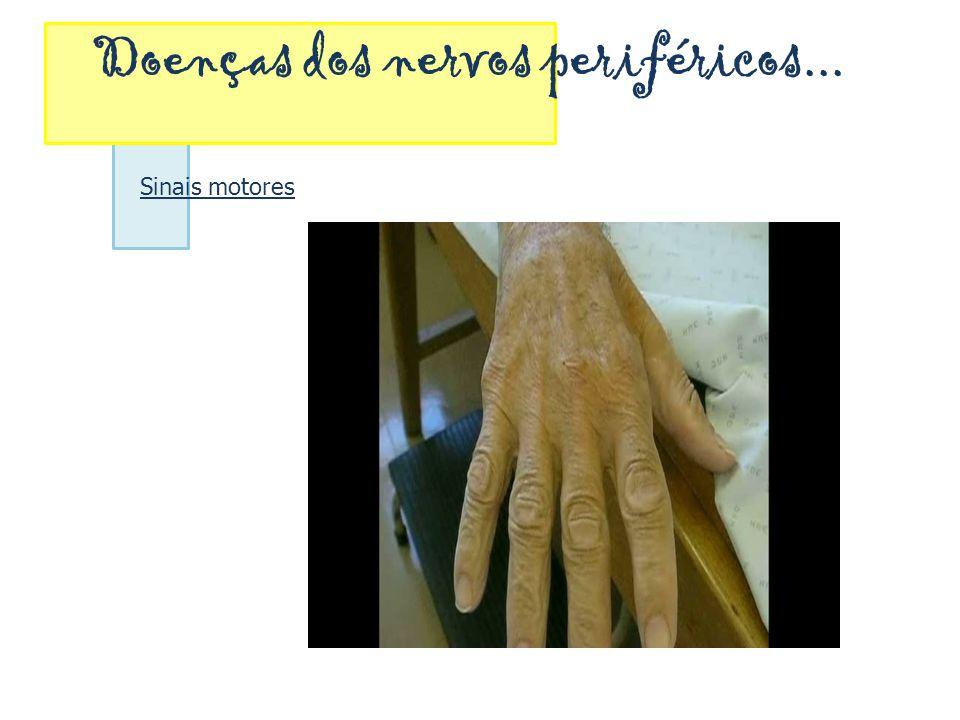Doenças dos nervos periféricos... Sinais motores