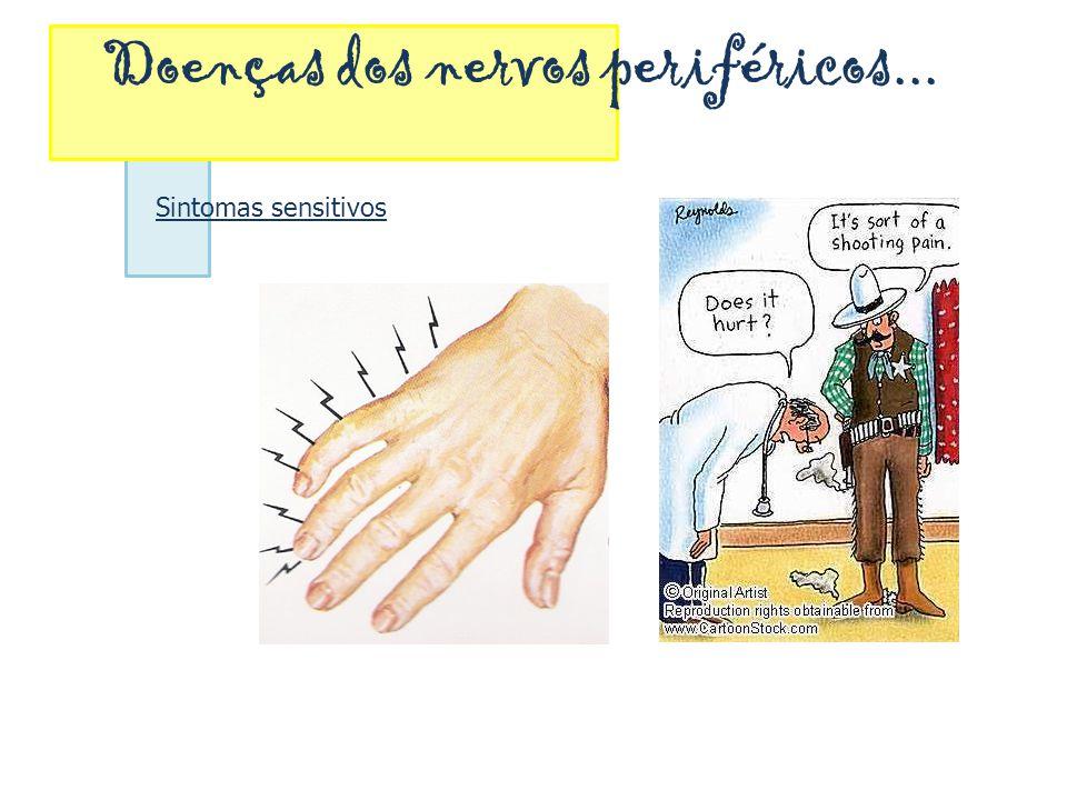 Doenças dos nervos periféricos... Sintomas sensitivos