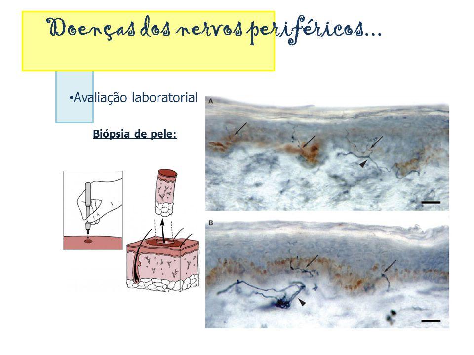 Doenças dos nervos periféricos... Avaliação laboratorial Biópsia de pele: